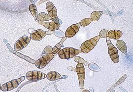 La alternaria spp es uno de los hongos aereos al que están expuestos los trabajadores en aserraderos